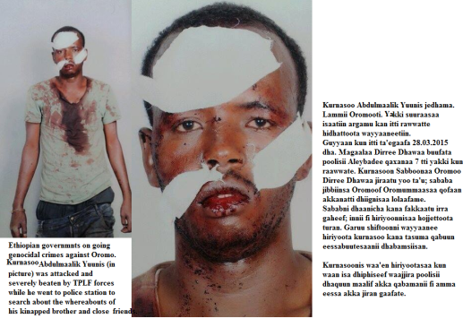 Kurnasoo Abdulmaalik Yuunis, Oromo national attacked by Woyane