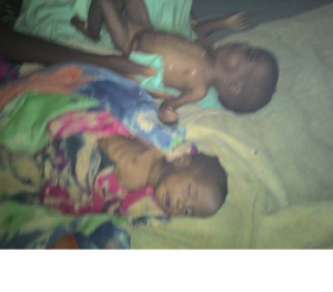 People are dying of famine in Ethiopia, Hararghe including children, mothers and adults July, August 2015 during Obama Africa visit