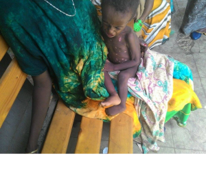 People are dying of famine in Ethiopia, Hararghe including children, mothers and adults July, August 2015 during Obama  Africa visit3