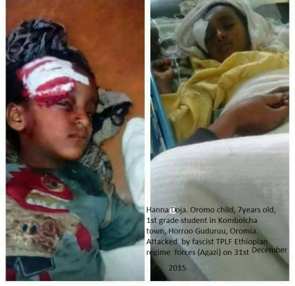 Hanna doja. Oromo child, 1st grade student in Kombolcha, Horroo Guduruu, Oromia. Attacked by Ethiopian regime fascist forces on 31st December 2015