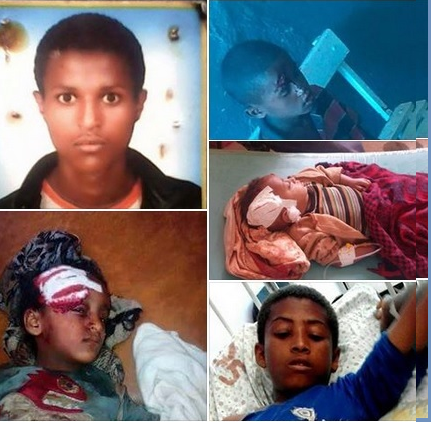 Oromo children, victims of fascist TPLF mass killings in Oromia, 2015 and 2016