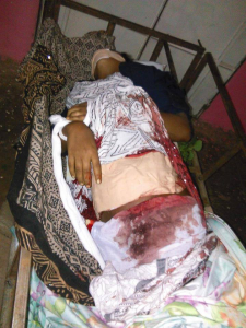 Body of Sabrina Abdalla, the 10th grade Oromo student who was gunned down in the night of 20 June 2016 byfascist Ethiopia's regime soldiers in Chalanqo, East Hararge.