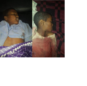 Fascist Ethiopia's regime forces killed several Oromo children in Awaday, Oromia, 1 July 2016