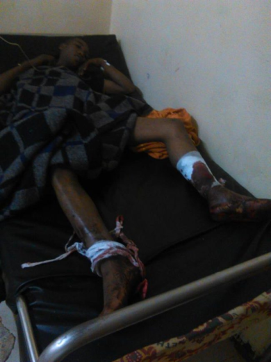 Oromo national Bayissa Qalbessa, one of the people was wounded by fascist Ethiopia's regime forces in Jaldu District, West Shawa, Oromia, 18 July 2016