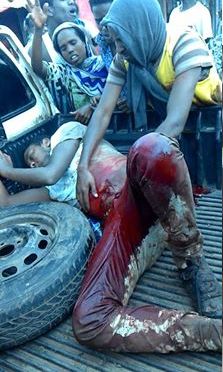 #OromoProtests, Awaday, Oromia  31 July 2016.  Fascist Ethiopia's regime forces killed 6 people and injured 26.