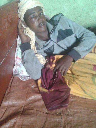 #OromoProtests, fascist Ethiopia's regime forces breaking into residence cruely attacked Saalih Ahmad, Oromo youth in Gadab, Asaasaa, Arsi, Oromia on 29 July 2016