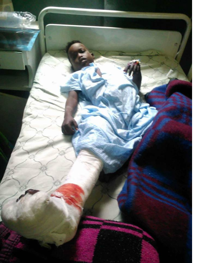 This Oromo child is Lencho Abdi Abdulkarim, one of the 6 people shot in Dogu town, Gurawa District, East Hararge when fascist Ethiopia's regime forces opened fire on wedding party on July 25, 2016