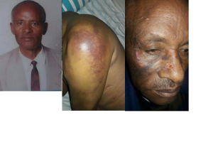 Kebede Gemeda, 70 years old Oromo man. He was arrested at the Grand Rally in Finfinne. He was beaten so badly that he lost one of his eye sight completely.