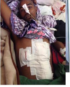 Zubeyr Kadir gunned down by Ethiopia's regime fascist forces on 6 August 2016 in Robe Bale, Oromia