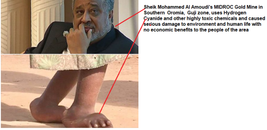 Sheik Mohammed Al Amoudi and MIDROC Gold Mine in Southern Oromia, Guji zone, uses Hydrogen Cyanide and other highly toxic chemicals and caused serious damage to environment and human